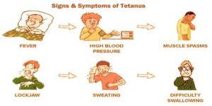 Signs and Symptoms of Tetanus